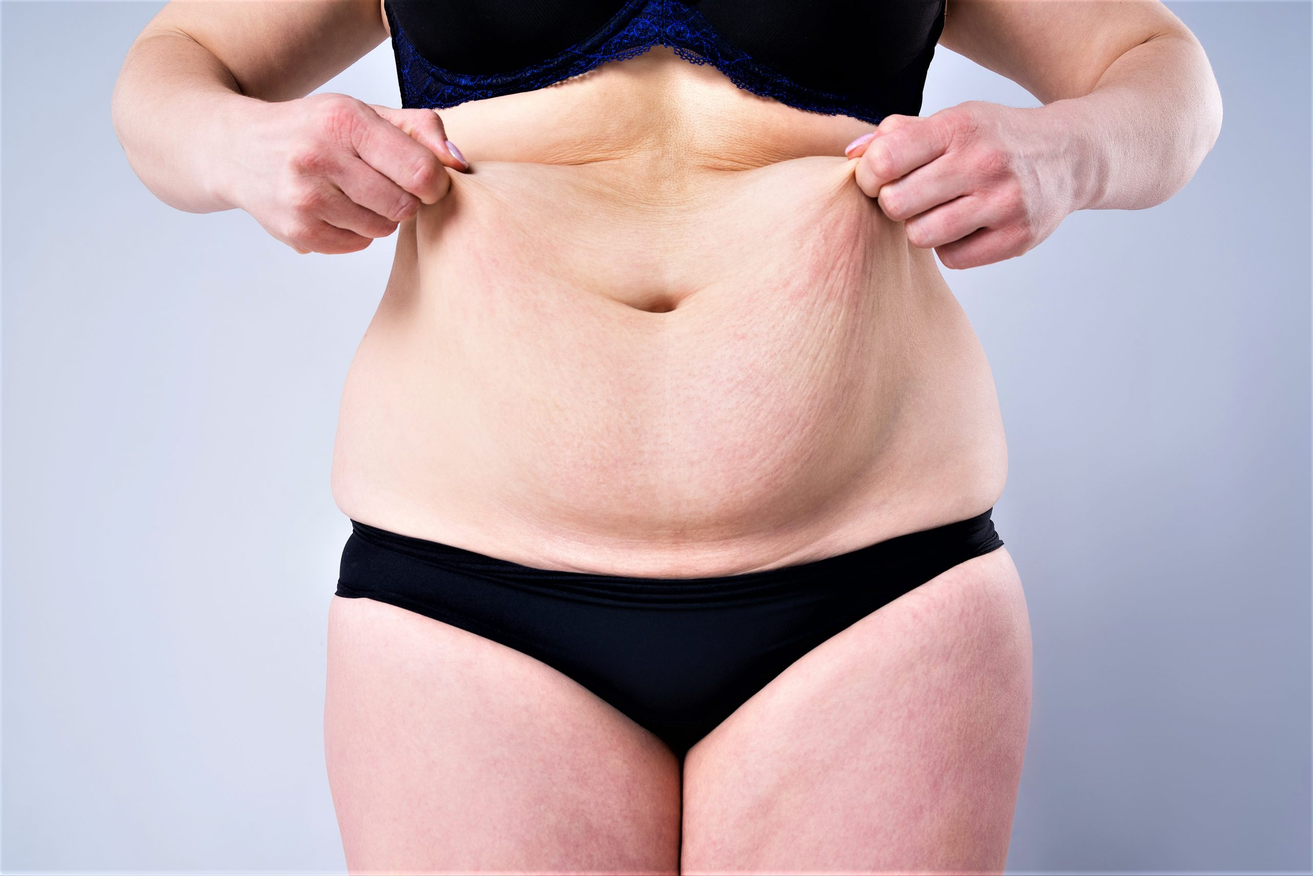 Circumferential Body Lift Surgery for Abdominal, Buttock & Thigh Laxity (Post-bariatric Weight Loss Contouring)